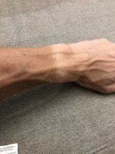 日焼けした腕